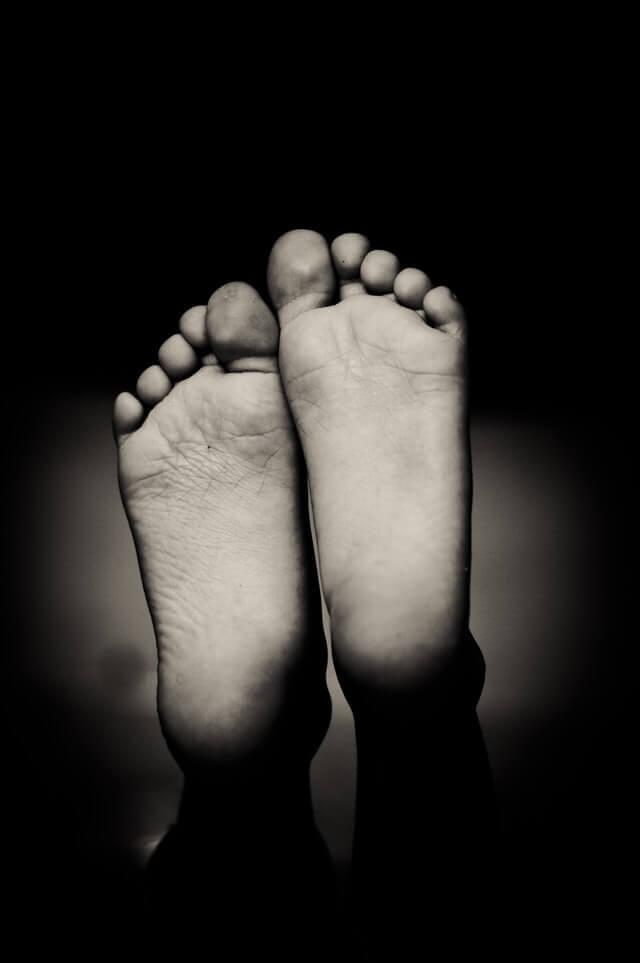 כף רגל סוכרתית